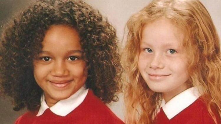 (FOTO) Gemeni unici: Două surori cu pielea de culoare diferită. Au 23 de ani și iată cum arată acum!